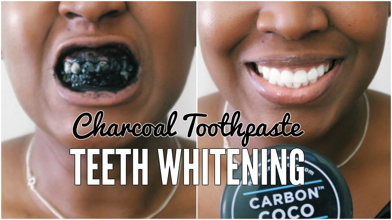 I Tried Whitening My Teeth With Charcoal For 5 Days Ft Carbon
