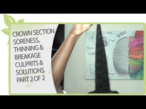 CROWN SECTION soreness, thinning & breakage CULPRITS & SOLUTIONS (part 2 of 2)