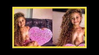 Le combat d'une petite fille dont le cœur bat hors de sa poitrine émeut les internautes