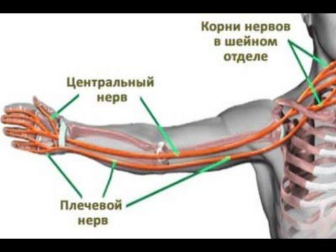 Почему во сне болит рука
