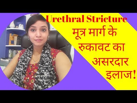 Urethral stricture treatment | urethral stricture homeopathy treatment | causes & symptoms | Video
