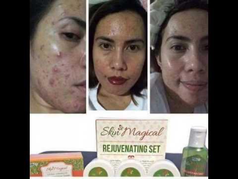 Skin Magical Rejuvenating Set Video