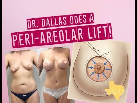 DR. DALLAS does a PERIAREOLAR BREAST LIFT! Plus a MOMMY MAKEOVER TRANSFORMATION!!