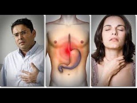 What does Heartburn Feel like