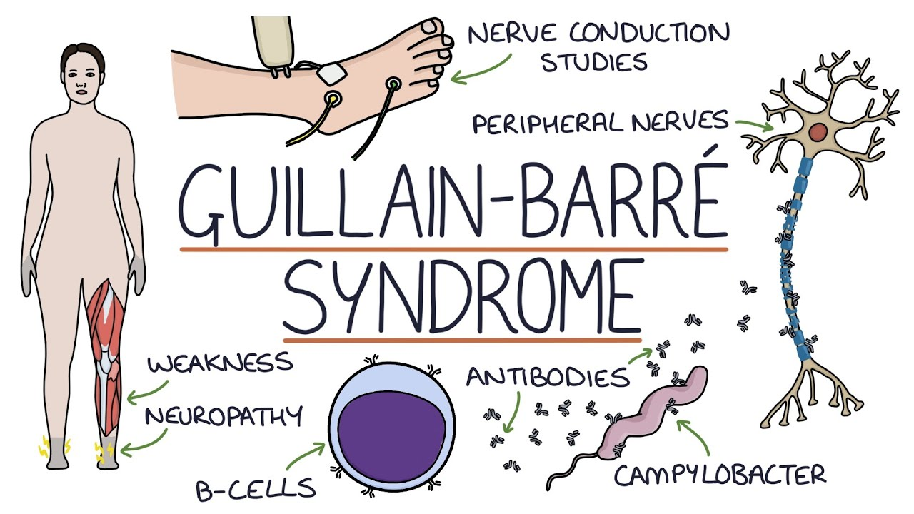 YOU SHOULD KNOW: What is Guillain-Barr syndrome?