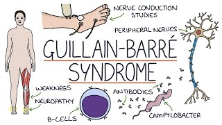 Understanding Guillain-Barré Syndrome