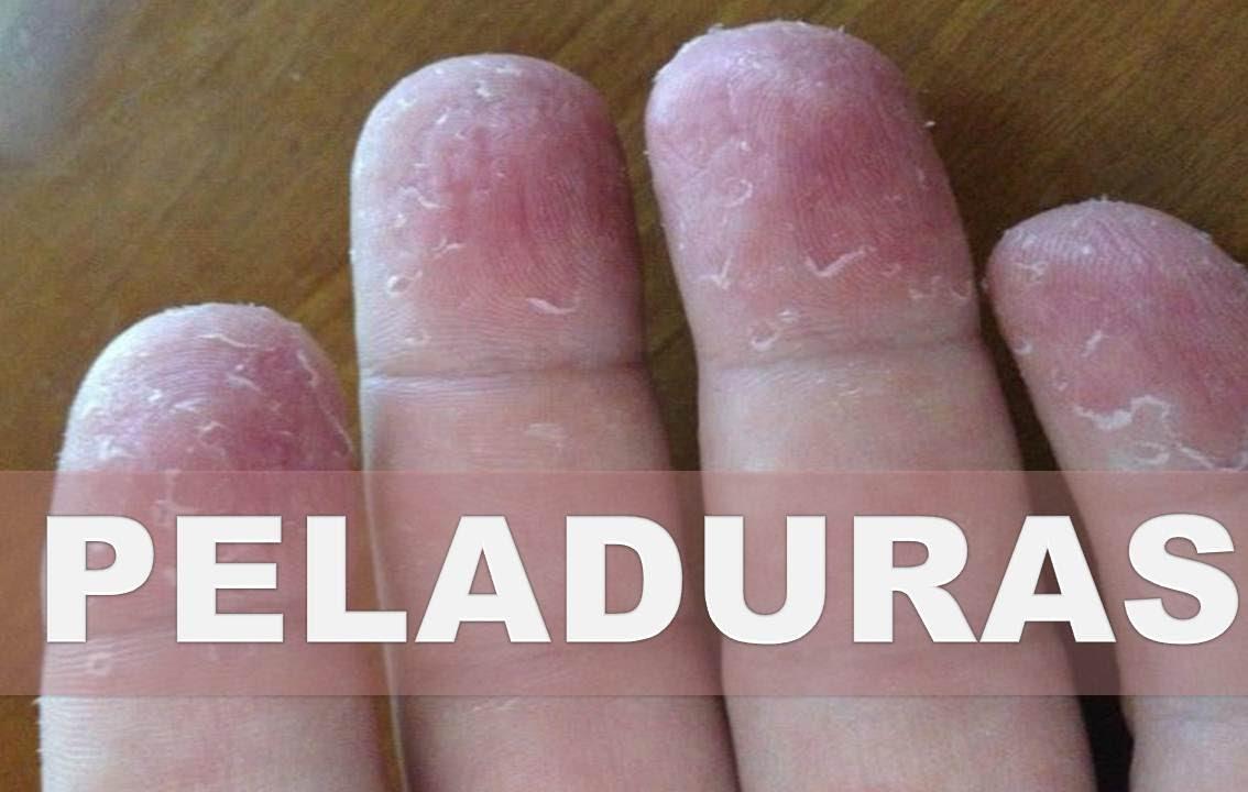 Las variedades del hongo sobre las uñas