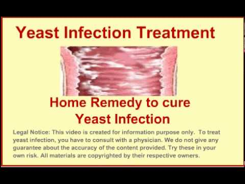 How to stop yeast infections naturally