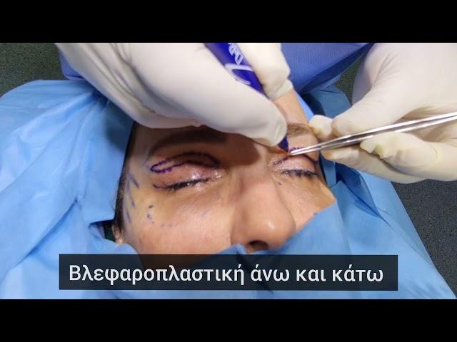 #βλεφαροπλαστική #blepharoplasty #plasticsurgery Βλεφαροπλαστική άνω και κάτω.