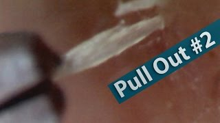 【No.02】ピンセットで角栓を抜く(pull out the keratin plug)[Whitehead/Blackhead]