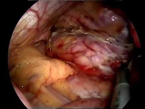 SP (uniportal) VATS esophageal diverticulectomy