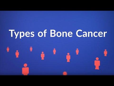 Types Of Bone Cancer (List, Symptoms, Treatments)