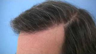 Hair Transplant by Dr Wong - 5257 Grafts - 1 Session