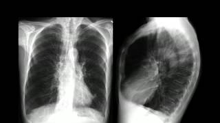 Pulmonar doença pulmonar vasculite