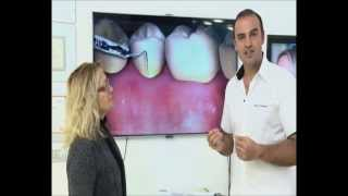 Diş Eti Çekilmesi - Esra Erol la Değişim Proğramı
