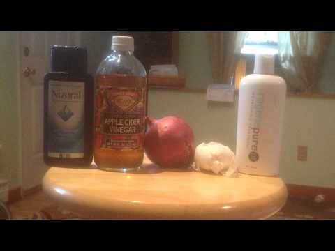 HAIR LOSS PRODUCTS THAT WORK. APPLE CIDER VINEGAR ,GARLIC,AND ONION