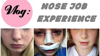 External Rhinoplasty Surgery Vlog: The Whole Experience