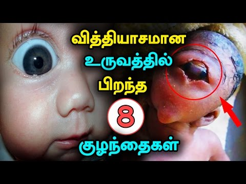 8 Strange Babies Born In The World – Strange Baby Born In India #strangebaby
