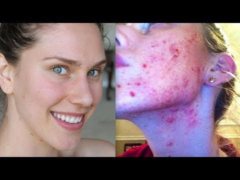 DIET I USED TO CURE MY ACNE AND CLEAR MY...