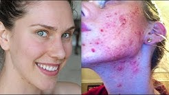 hqdefault - Raw Diets And Acne