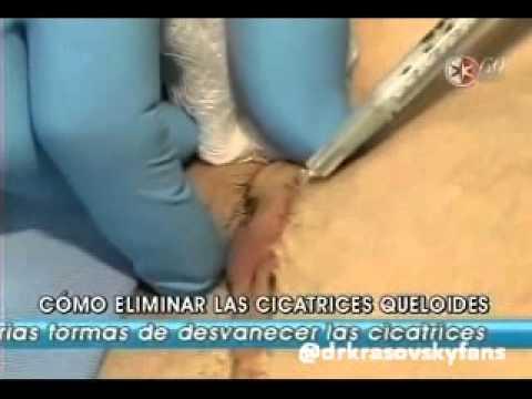 Pele Jovem com Máscara de Ouro - Dra Alessandra Morgado - Cursos e Atendimentos from YouTube · Duration:  40 minutes 7 seconds