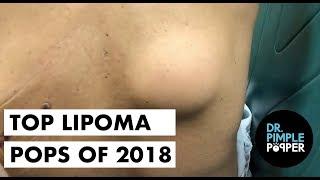 TOP LIPOMA POPS 2018