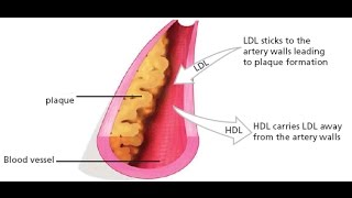 วิธีลดไตรกลีเซอไรด์ในเลือด