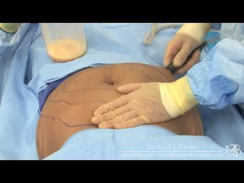 Liposuction of a woman's abdomen
