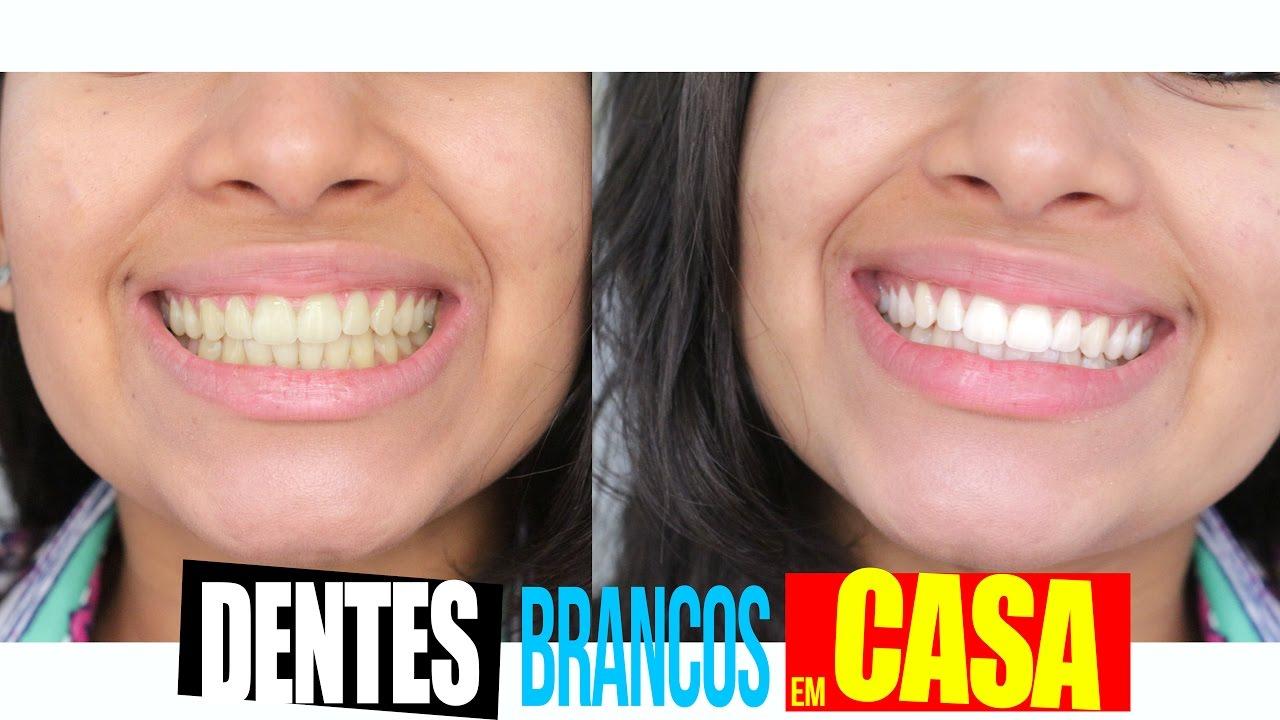 Tirar Amarelo Dos Dentes Clareamento Em Casa 2 Youtube