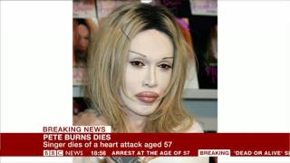 Pete Burns has died - BBC News Channel - 24th October 2016
