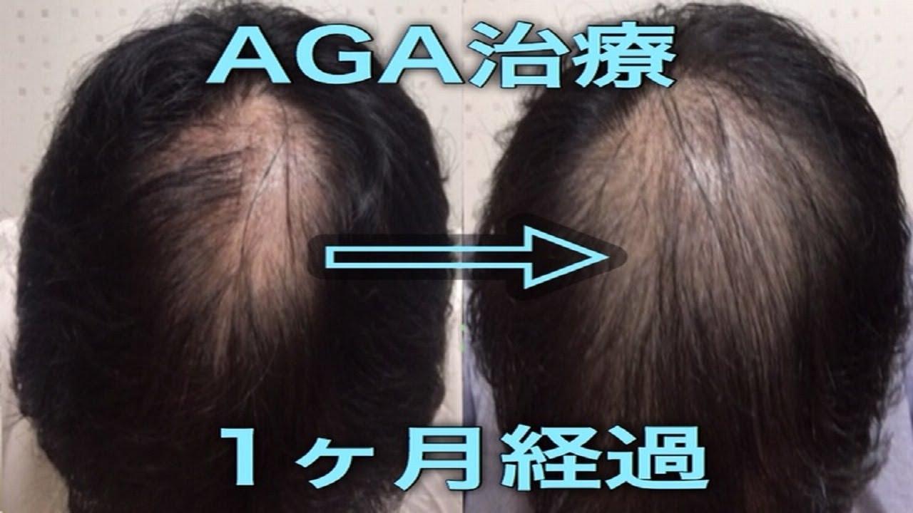 初期 脱毛 プロペシア ひどい!プロペシアの初期脱毛!期間はどのくらい?