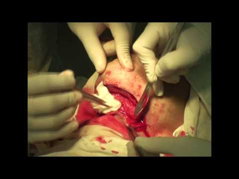 Флегмона дна полости рта у человека »