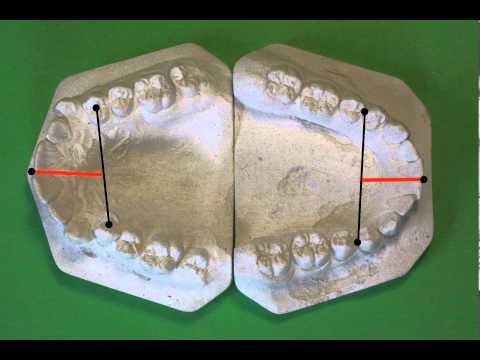 Коронки на зуб – какие бывают, фото, отзывы