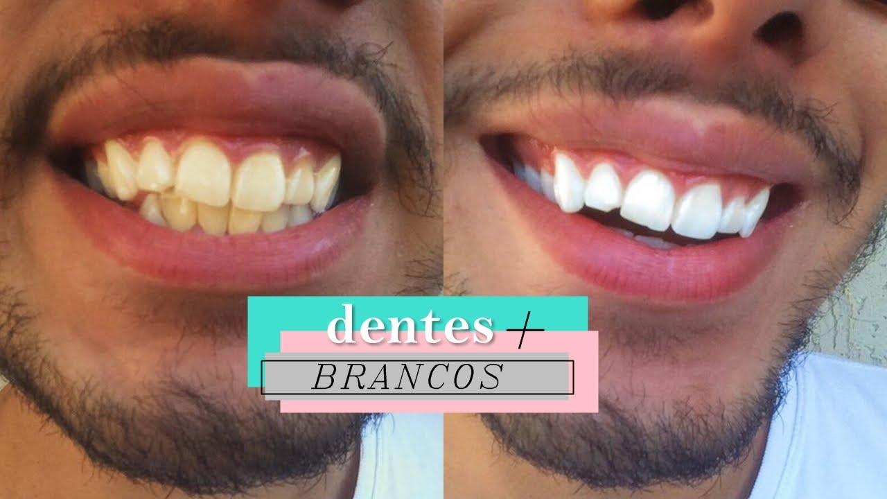 Como Clarear Os Dentes Em Casa Dentes Mais Brancos Em Minutos Youtube