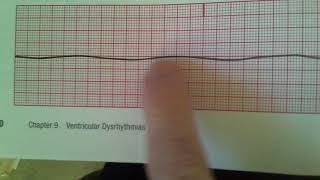 Agonal and Asystole