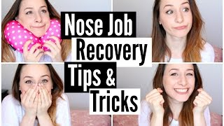 Nose Job Recovery Tips & Tricks • itsbinkybee