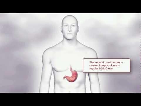 NSAIDs & GI Side Effects | TYLENOL® Professional