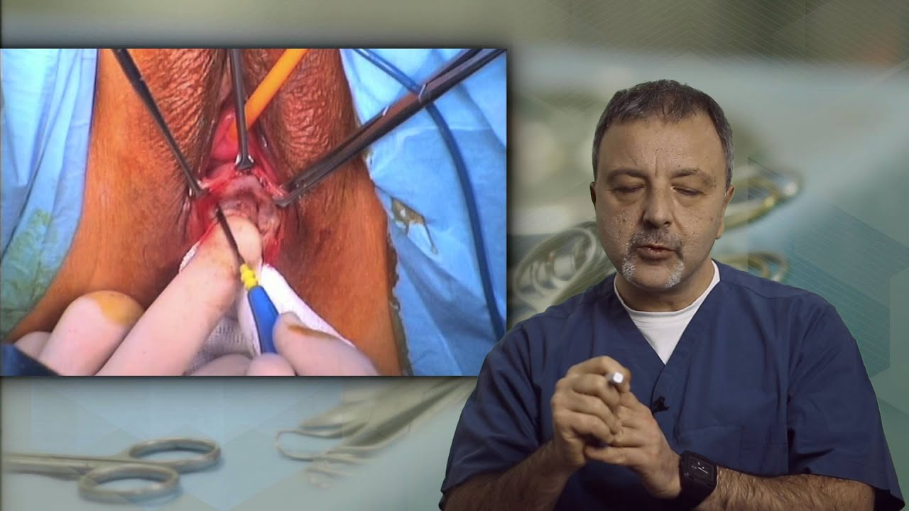 Rectocele Repair - Transperineal With Mesh
