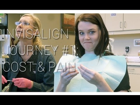 Invisalign Journey Cost Pain