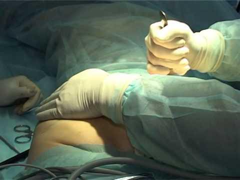 Фото большие голые жопени раком