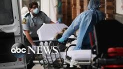 Doctors test rare treatment on COVID-19 patients