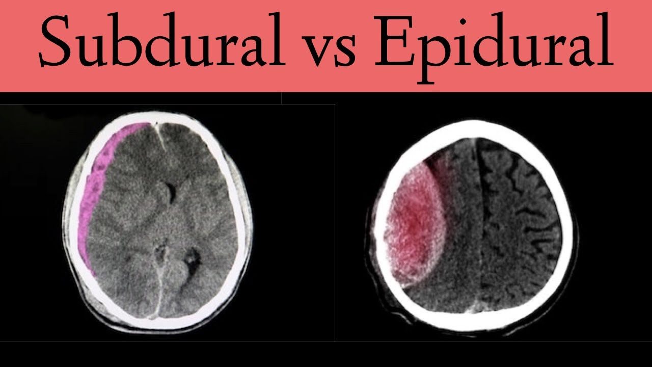Hematoma subdural epidural hematoma vs Epidural and
