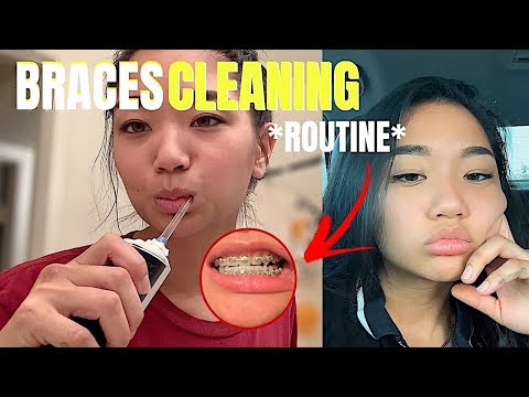 ★ BRACES CLEANING ROUTINE 2019 (with braces progression) 2019
