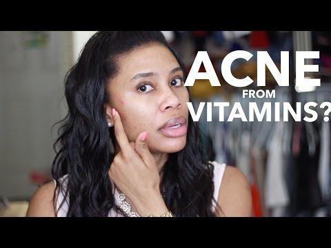 Acne from Hair Vitamins?