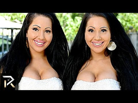 Download Youtube: 10 Unusual Twins You Won't Believe Exist