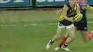 AFL Player Nathan Brown Breaks Leg