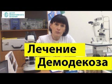 Демодекоз лечение. как правильно лечить демодекоз на лице на 100%