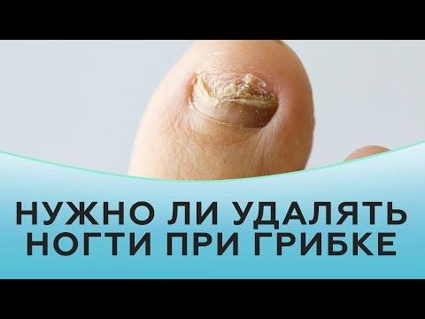 Как удалить ноготь пораженный грибком в домашних условиях