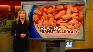 Allergist Dr. Michael Wexler speaks with WCCO news about a wonderfu...