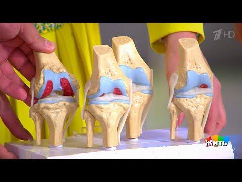 Жить здорово! Остеоартроз: боль в коленных суставах.( 18.12.2017)